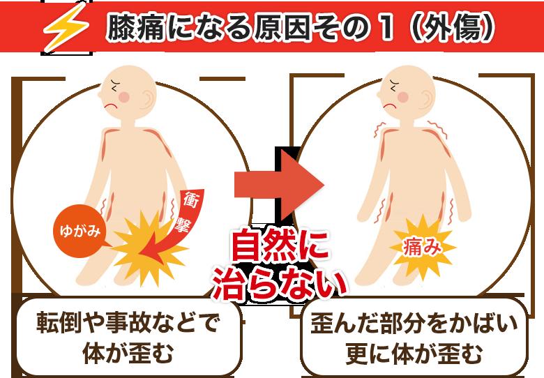 膝痛になる原因その1(外傷)