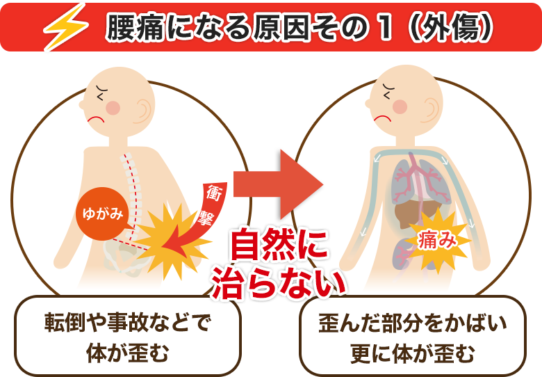 腰痛になる原因その1(外傷)