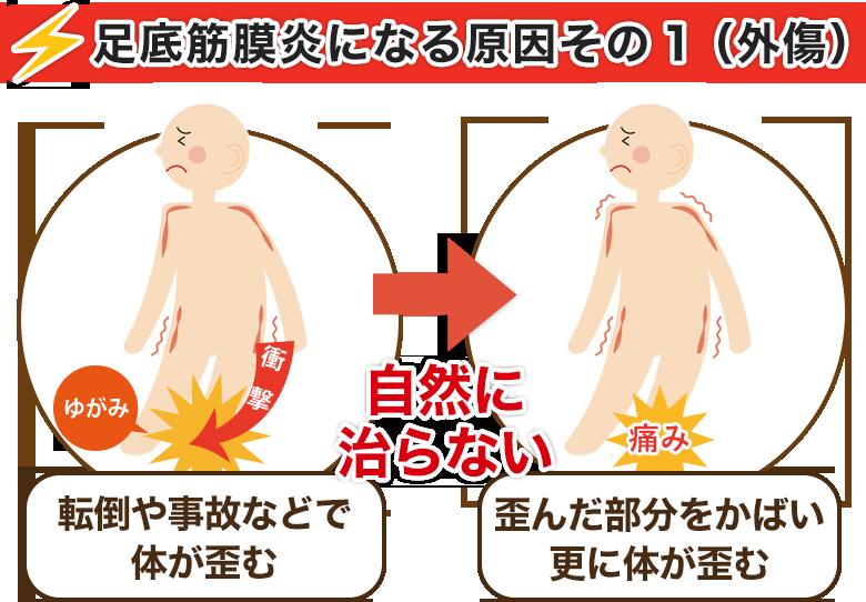 足底筋膜炎になる原因その1(外傷)