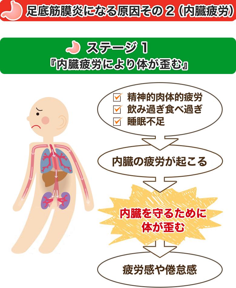 足底筋膜炎になる原因その2(内臓疲労)