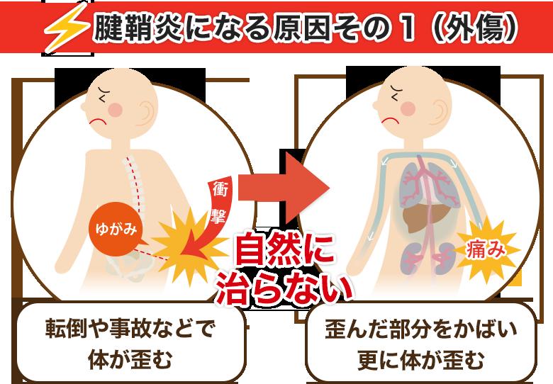 腱鞘炎になる原因その1(外傷)