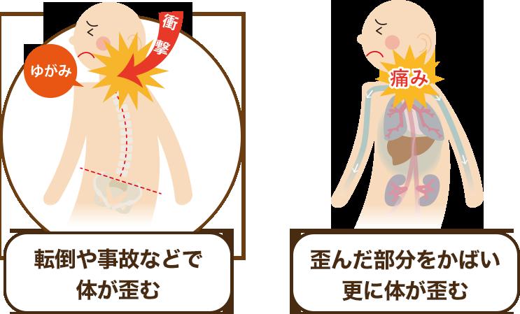 顎関節症になる原因その1(外傷)