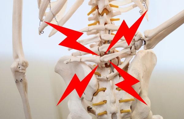 腰椎椎間板ヘルニアを克服したい方必見!!